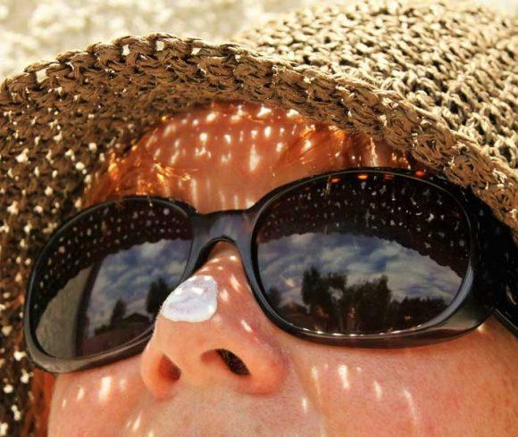 Rasche Hilfe bei Sonnenbrand